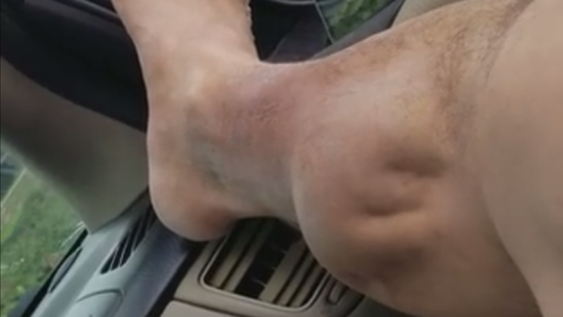 This Guy Has One Of The Most Horrific Looking Calf Cramps Ever