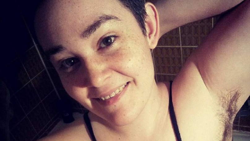 Mum With PCOS Shows Off Body Hair To Empower Other Women