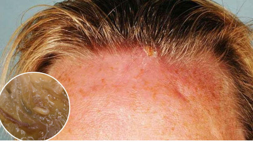 Woman Visits Doctor With Swollen Head And Two Maggots Are Dug Out