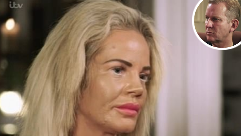 Mum Let Daughter Sleep With Older Men To Pay For Her Plastic Surgery