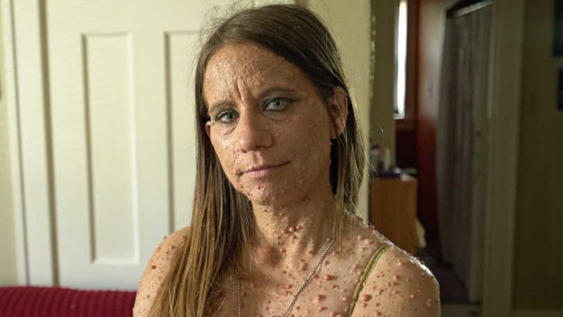 Woman Undergoes Surgery To Remove Hundreds Of Tumours Over Body