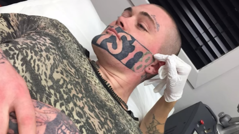 Man With Massive 'Devast8' Face Tattoo Finally Gets It Lasered Off