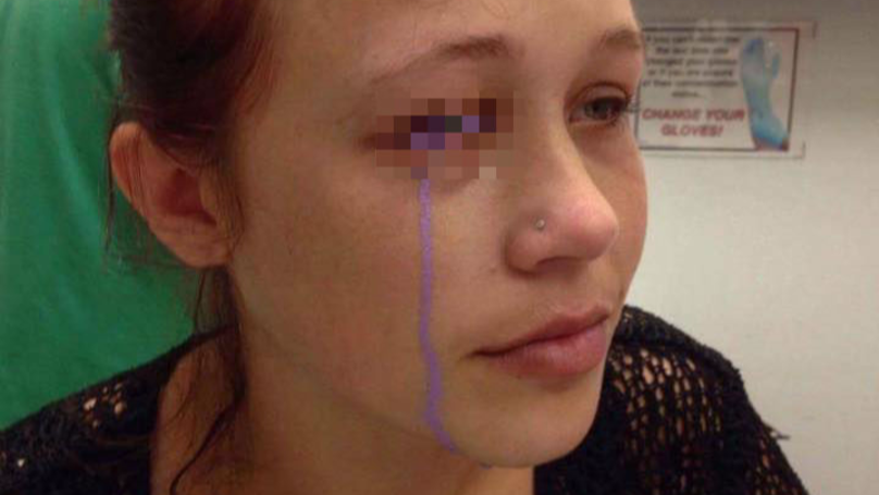 Girl Faces Blindness After 'Massive Mistake' Eye Tattoo Goes Horribly Wrong
