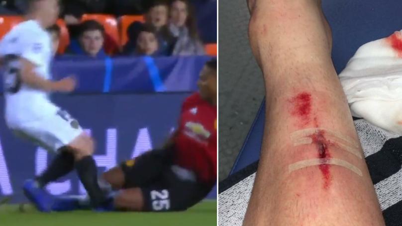 Toni Lato Reveals Nasty Injury From Antonio Valencia's Brutal Tackle