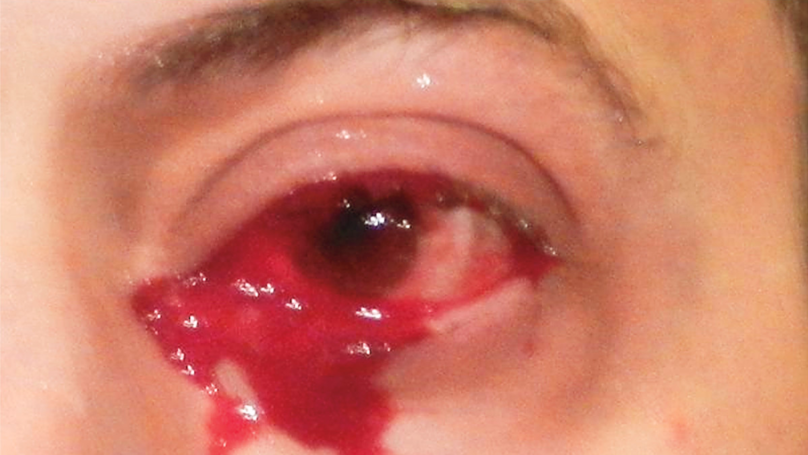 Man Treated By Emergency Doctors Because He Started Crying Blood