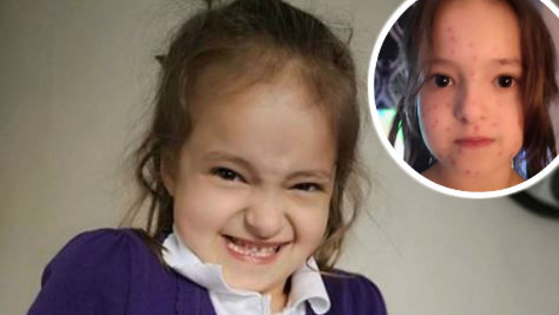 Crafty Schoolgirl's Sick Day Backfired When Permanent Marker 'Chicken Pox' Stained