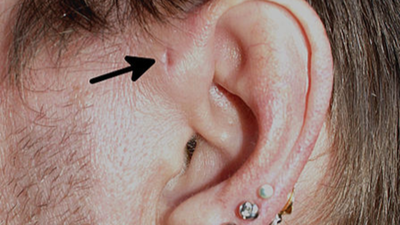 Rare Tiny Holes In People's Ears Could Be 'Remnants Of Fish Gills'