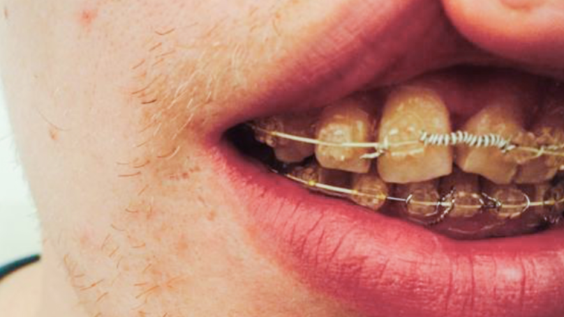 Man Receives Payout After Being Left With Yellow Twisted Teeth