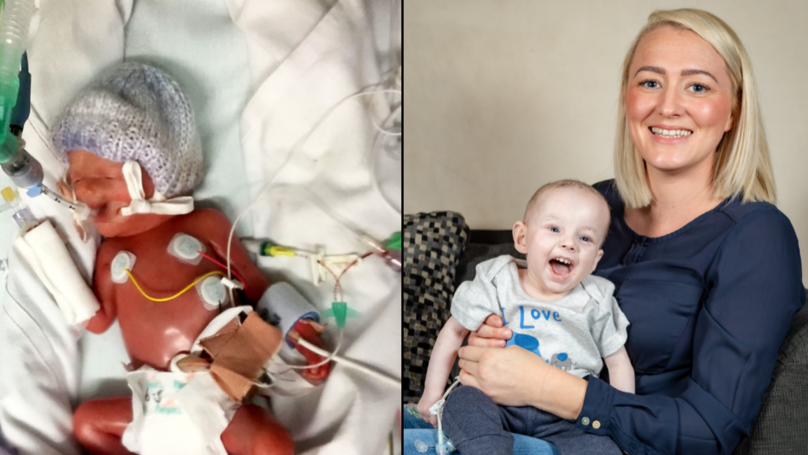 Toddler With Severe Sunlight Allergy Spends His Life In Darkness