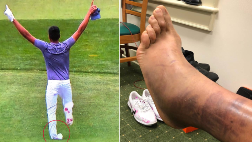 Nobody Can Understand How Tony Finau Played At The Masters After Gruesome Images Emerge