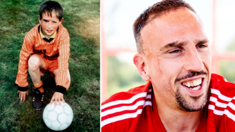 Franck Ribery Heartbreaking Story Behind His Facial Scars