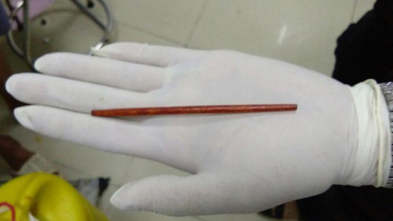 A Guy Had To Get A Chopstick Removed From His Penis After Inserting It While Blind Drunk