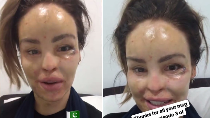 Katie Piper Is Recovering In Hospital In Pakistan Following Operation