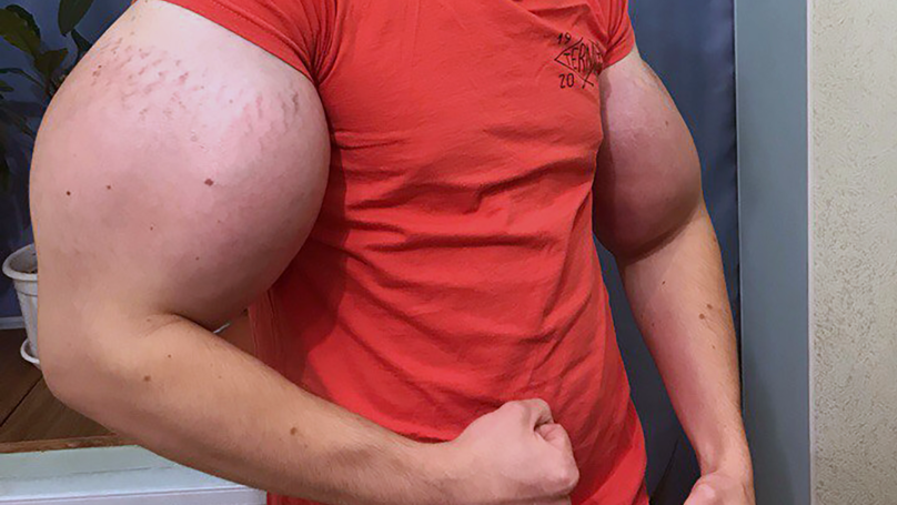 ​Man With Huge 'Popeye' Arms Could Lose Them, According To Doctors
