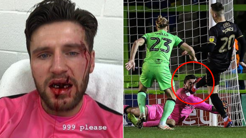 Goalkeeper Loses Teeth And Suffers 'Horrendous Cut' After Taking A Boot To The Face
