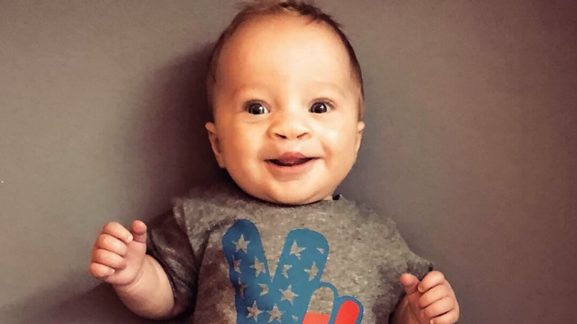 Baby Born With Cleft Lip Smiles For The First Time