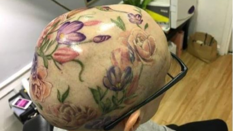 Woman With Alopecia Gets Amazing Flower Tattoo On Her Head