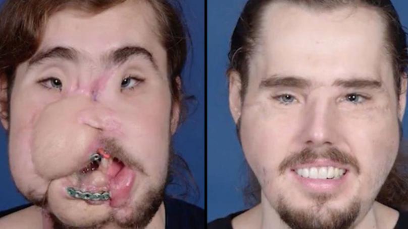 在脸上开枪自杀的人进行面部整容手术