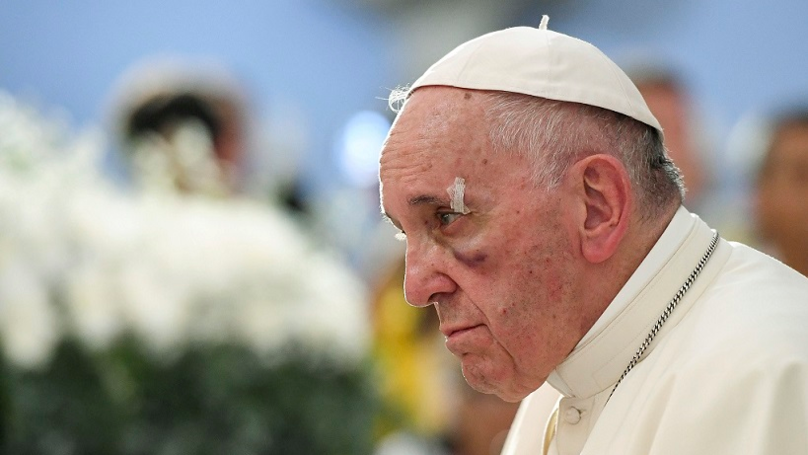 Pope Francis Suffers Black Eye During Papal Visit To Colombia