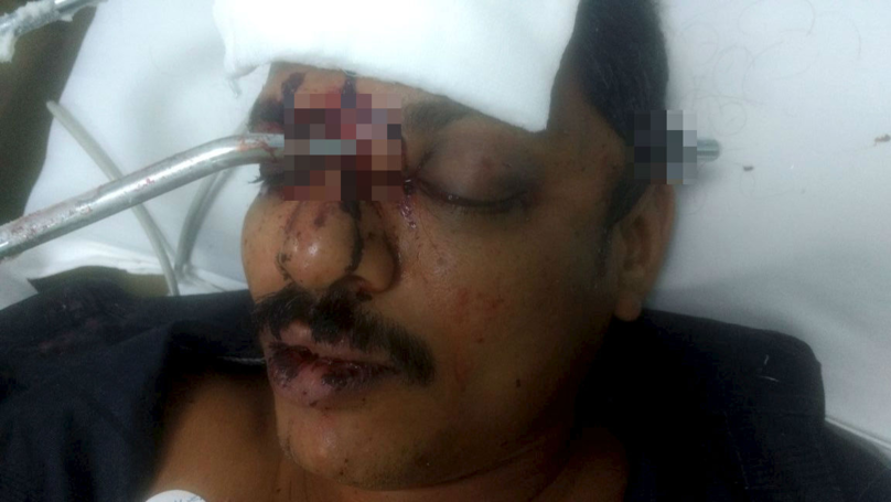 Man Survives Crash That Left Him With A Metal Rod Through His Skull