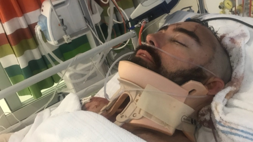 ​Heroic Dad Left Seriously Injured After Saving Son From Balcony Fall