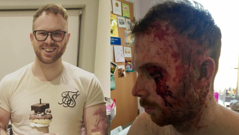 Acid Attacks Are On The Rise Across The UK