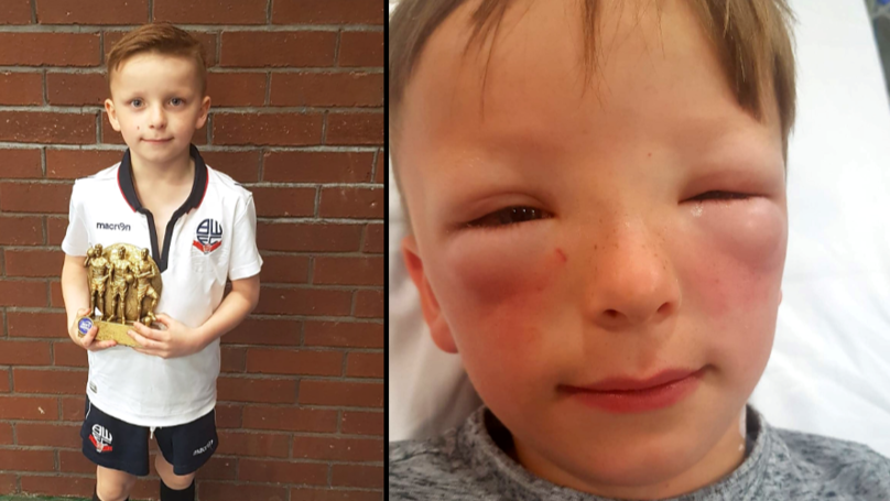 Boy's Face Trebles In Size Due To Hay Fever