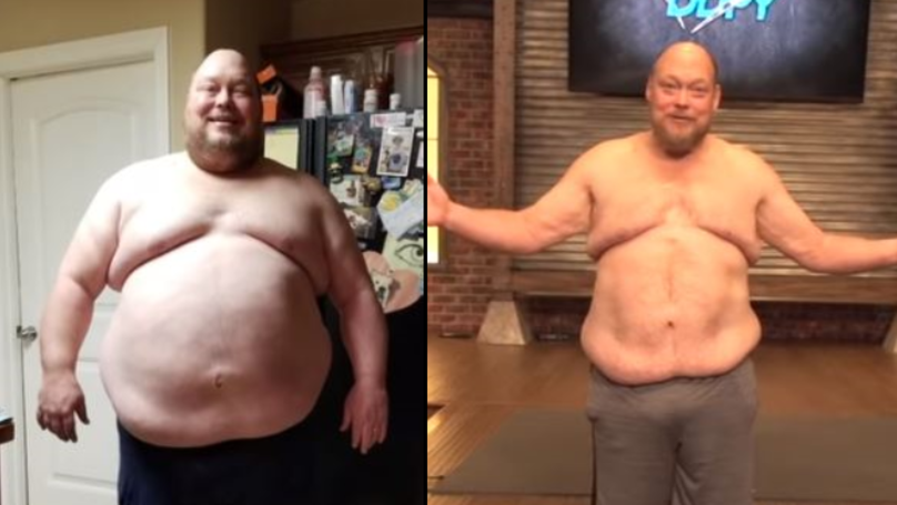 Man Loses 198 Pounds In One Year And Looks Like A Different Person
