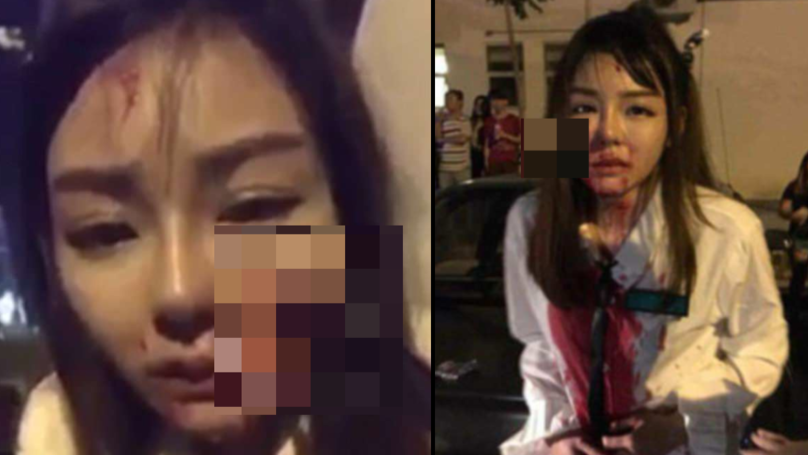 Woman Left With Knife Sticking Out Of Her Face After Attack