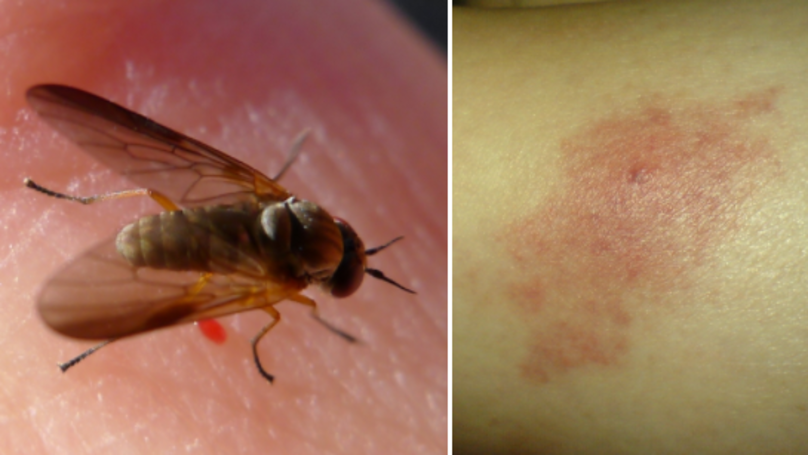 Brits Warned Over Nasty Blandford Fly Bites Causing Swelling And Blistering