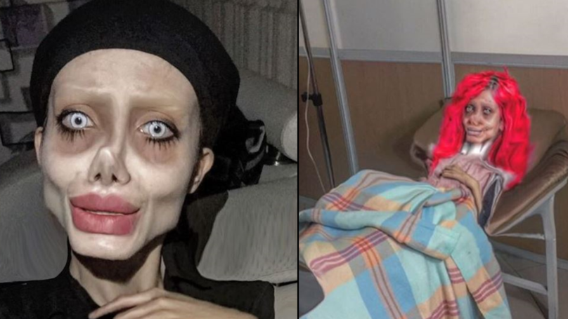 Angelina Jolie 'Lookalike' Claims To Have Broken Her Neck In Christmas Day Instagram Snap