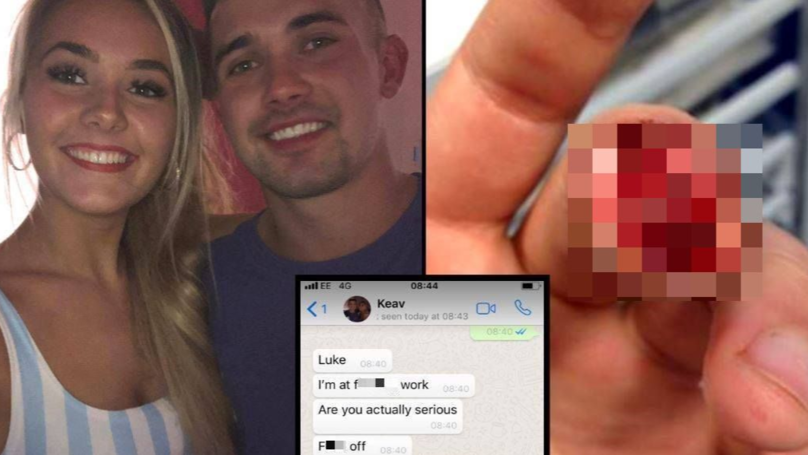 Man Pulls Ultimate April Fool's On Girlfriend With Severed Finger Prank
