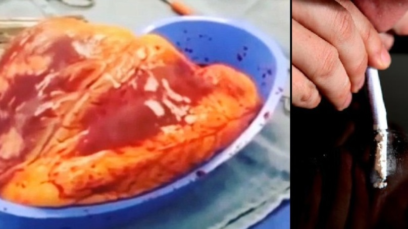 Grim Video Shows The Damage Cocaine Abuse Does To The Heart
