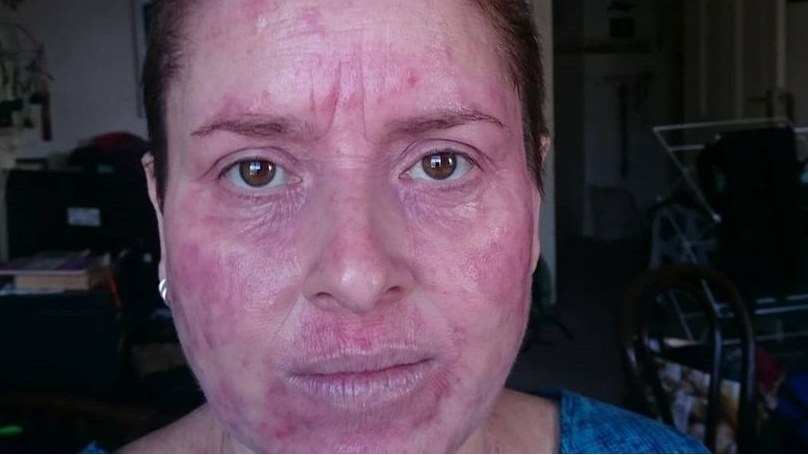 ​Woman's Eczema Flare-Up From Beer So Bad She Could Have Fried Egg On Hot Skin