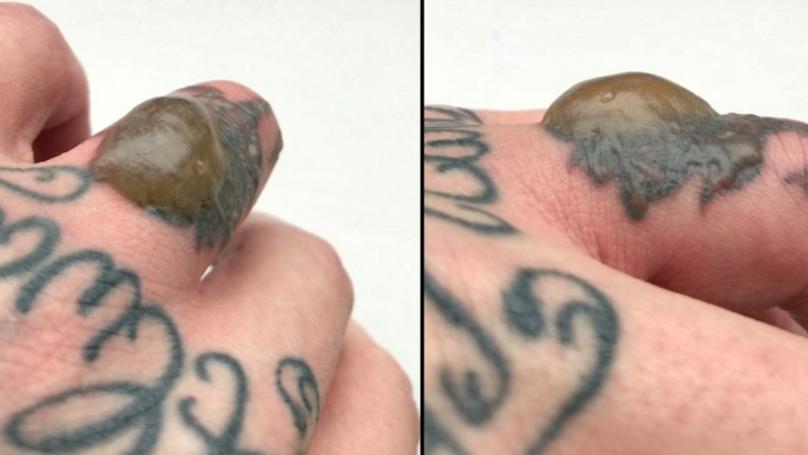 Man Develops Huge Disgusting Blister On Finger After Laser Tattoo ...