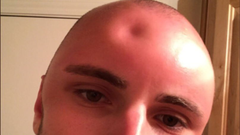 Sunscreen for a shaved head that interrupt