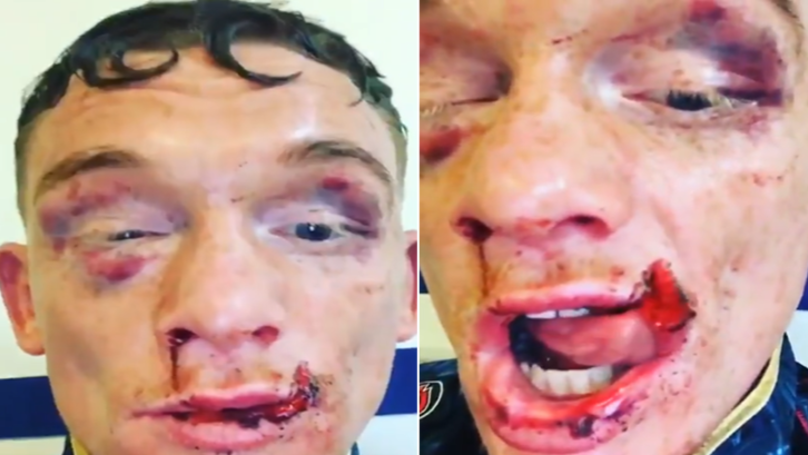 Boxer's Lip Is Genuinely Hanging Off After Fight And It's Grim