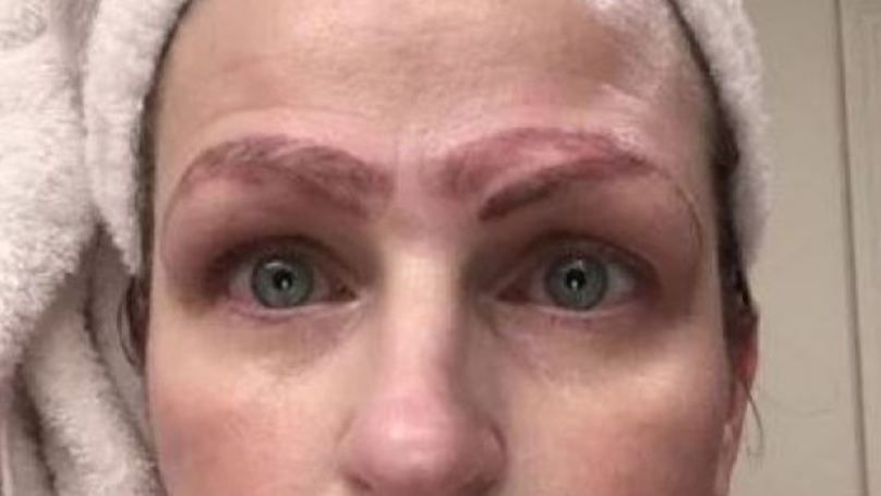 Woman Left With Four Eyebrows Following Botched Microblading Treatment