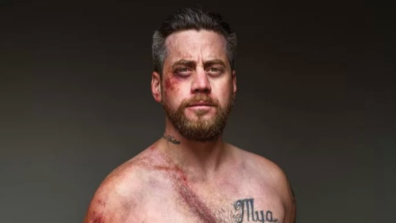 Car Crash Survivors' Injuries Recreated In Chilling Photoshoot