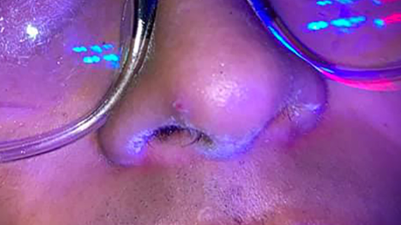 Man Allegedly Caught With Cocaine On His Nose Told Police It Wasn't His