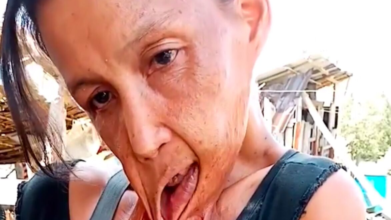 Mum Caught In Fire Has Spent Last 15 Years With Lip Stuck To Chest