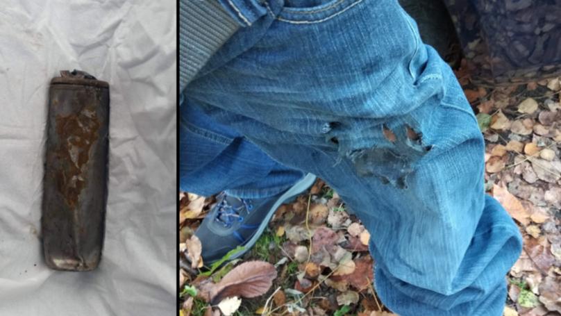 男人的烟爆炸导致烧伤的腿和生殖器