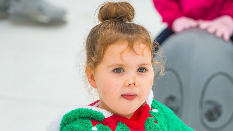 ​Little Girl Who Lost Both Arms And Legs Enjoys A Bit Of Festive Ice Skating