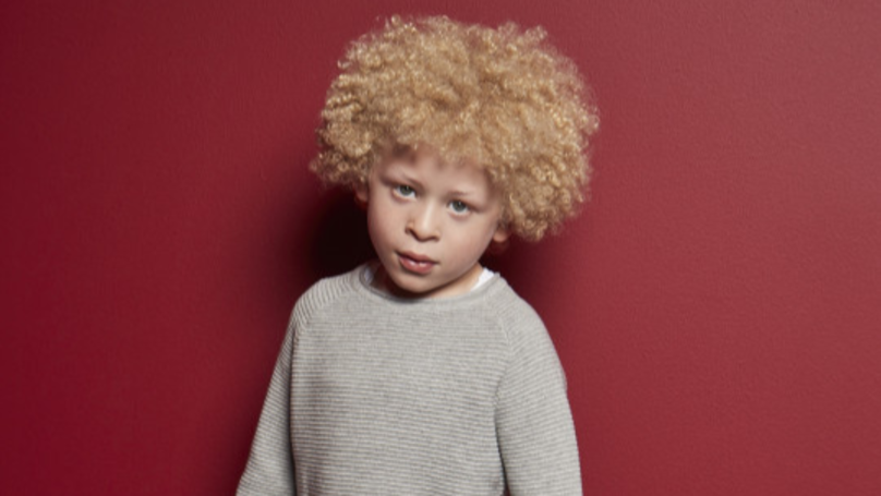Inspirational Five-Year-Old With Albinism Becomes Face Of Primark's Kids Range