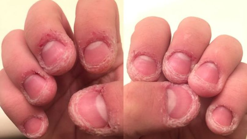 Why You Shouldn\'t Bite Or Pick The Skin Around Your Finger Nails ...