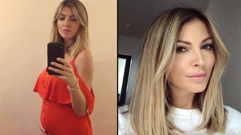 Former Model Sam Smalling Opens Up About Living With Condition That 'Makes Her Look Pregnant'