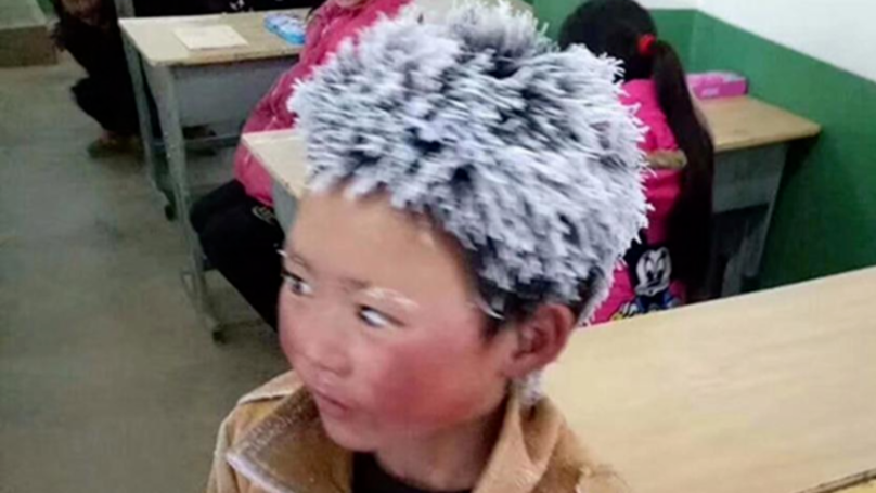 Chinese Boy With Frozen Hair Has Received A Fraction Of Donation Money