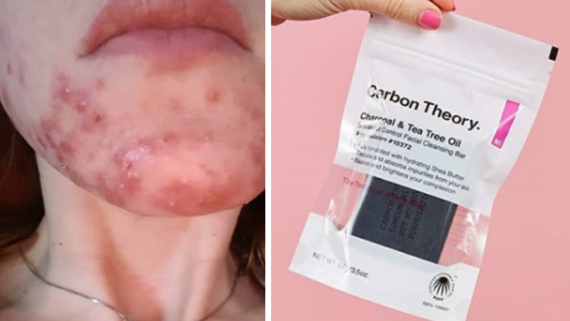 Woman Praises £6 Carbon Theory Soap For 'Curing Acne' In Days
