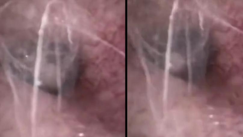 Doctor Finds Spider Spinning Webs Inside Pensioner's Ear