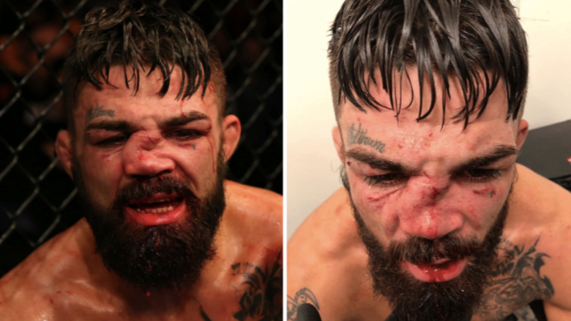 UFC Fighter Mike Perry Suffers One Of Worst Broken Noses In UFC History